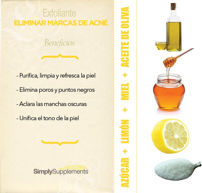 la+miel+con+limon+y+azucar+sirve+para+el+acne